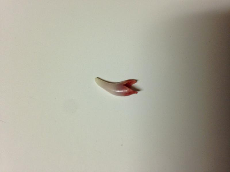 My boy lost his first tooth!!-imageuploadedbypg-free1400812001.281798.jpg